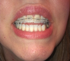 Mom Gets Braces: Top Braces Are On! (4)