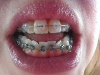 Swallowing Braces Brackets