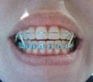 Mom Gets Braces Triangle Elastics 7 Helping Moms Connect