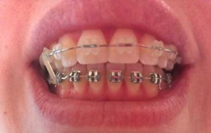 Mom Gets Braces: More Rubber Bands (8)