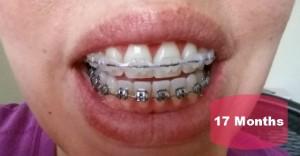 Braces After 17 Months