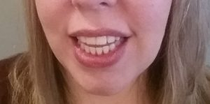 Mom Gets Braces: All Done! What Now? (10)